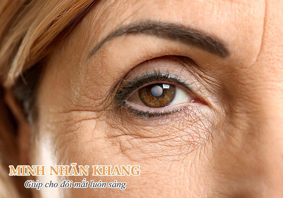 Hình ảnh mắt bị đục thủy tinh thể